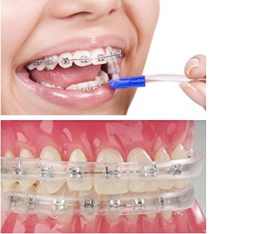 ortodoncija higijena
