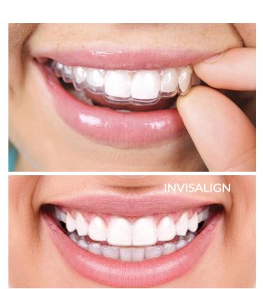 ortodoncija invisalign