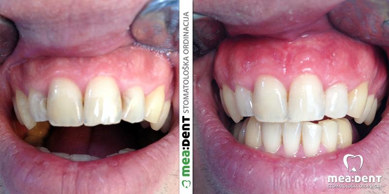 Kompozitne bele plombe na prednjim zubima