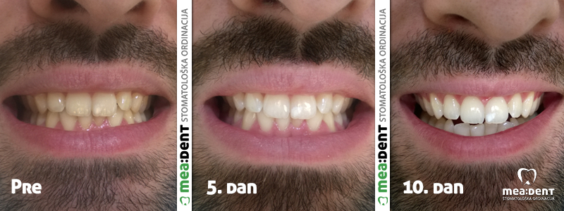 Beljenje zuba splintovima