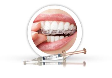 Kućno beljenje zuba