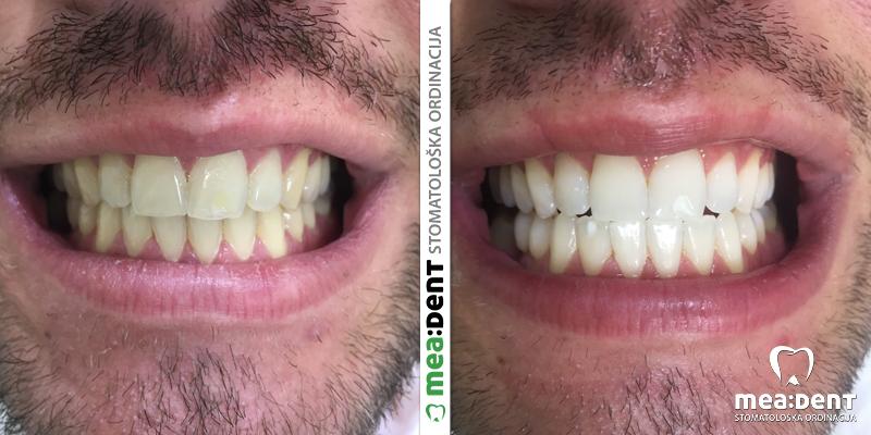 ordinacijsko beljenje zuba