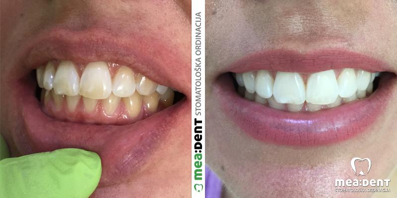 Како природним путем уклонити рачун са зуба