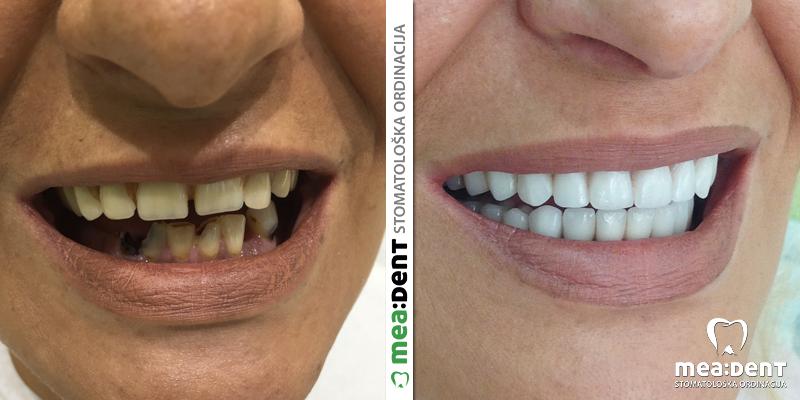 totalna proteza vita zubi