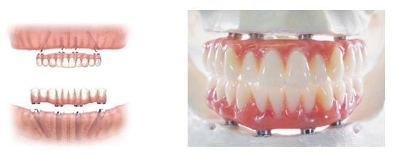 implants-and-ceramic-bridge