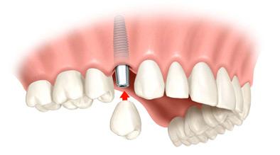 Rešenje implantom nedostatak jednog zuba
