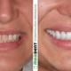 Bezmetalne krune na prednjim zubima | I.Z. 38 godina