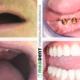 all-on-4-locator-denture-proteza