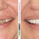 tetraciklinski zubi